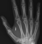 51-RFID Chip in hand